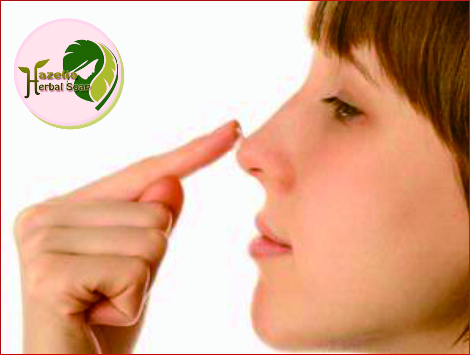 Cara Menghilangkan Komedo Secara Alami Sabun Herbal Sabun Herbal Hazelia Sabun Herbal Solo Distributor Sabun Herbal